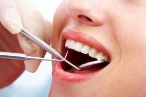teeth-cleaning-sherman-oaks
