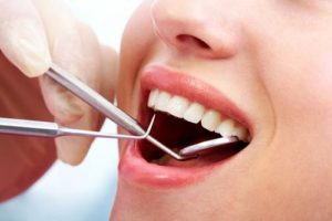 teeth-cleaning-sherman-oaks-2